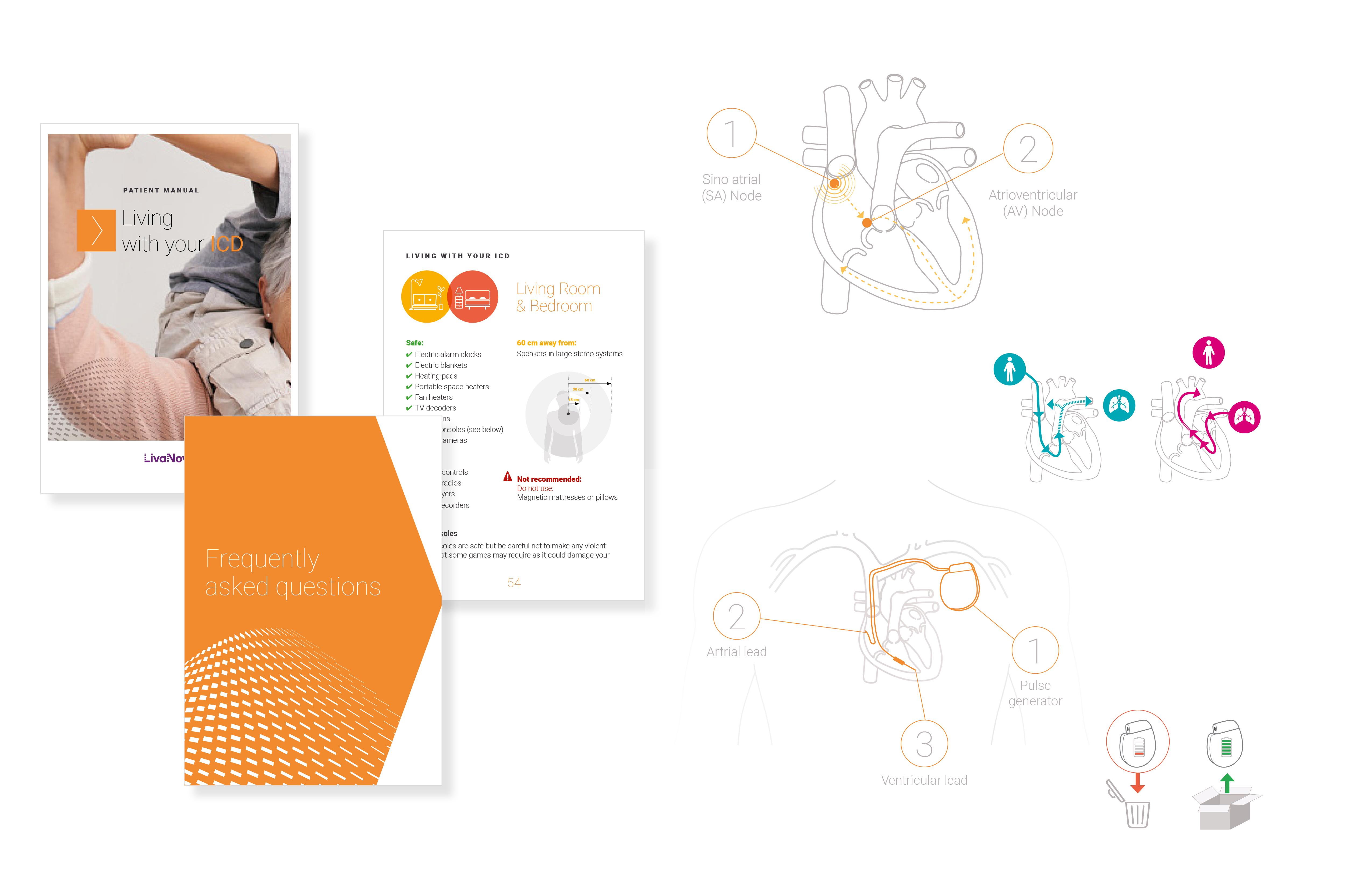 Création d'illustrations, de pictogrammes et réalisation du booklet pour LivaNova / Client : Egg